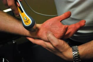 Cold Laser Joint Therapy, Fishers, IN